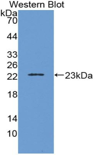 Western blot of recombinant IL1B.