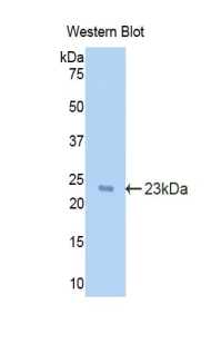 IL-1B / IL-1 Beta Antibody - Western blot of recombinant IL1B.  This image was taken for the unconjugated form of this product. Other forms have not been tested.