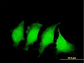 Immunofluorescence of monoclonal antibody to IL1B on HeLa cell . [antibody concentration 10 ug/ml]