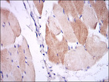 IHC of paraffin-embedded muscle tissues using IL1B mouse monoclonal antibody with DAB staining.