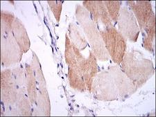 IL-1B / IL-1 Beta Antibody - IHC of paraffin-embedded muscle tissues using IL1B mouse monoclonal antibody with DAB staining.