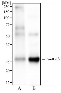 Western Blot: IL1 beta Antibody (43N1F9) - Western blot analysis of human spleen tissue (A) and human tonsil tissue (B) using IL1 beta antibody at 2 ug/ml.  This image was taken for the unconjugated form of this product. Other forms have not been tested.