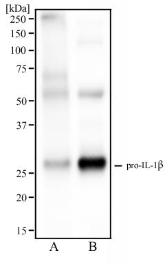 Western Blot: IL1 beta Antibody (43N8F6) - Western blot analysis of human spleen tissue (A) and human tonsil tissue (B) using IL1 beta antibody at 2 ug/ml.  This image was taken for the unconjugated form of this product. Other forms have not been tested.