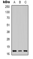 IL-1B / IL-1 Beta Antibody - Western blot analysis of IL-1 beta expression in HeLa (A); SHSY5Y (B); mouse liver (C) whole cell lysates.