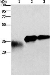 Western blot analysis of Mouse testis tissue, 10ng and 20ng fusion protein, using IL1B Polyclonal Antibody at dilution of 1:400.