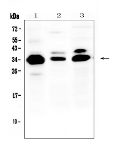 IL-1B / IL-1 Beta Antibody - Western blot analysis of IL-1 beta using anti-IL-1 beta antibody. Electrophoresis was performed on a 5-20% SDS-PAGE gel at 70V (Stacking gel) / 90V (Resolving gel) for 2-3 hours. The sample well of each lane was loaded with 50ug of sample under reducing conditions. Lane 1: human COLO-320 whole cell lysate,Lane 2: rat spleen tissue lysate,Lane 3: mouse NIH3T3 whole cell lysate. After Electrophoresis, proteins were transferred to a Nitrocellulose membrane at 150mA for 50-90 minutes. Blocked the membrane with 5% Non-fat Milk/ TBS for 1.5 hour at RT. The membrane was incubated with rabbit anti-IL-1 beta antigen affinity purified polyclonal antibody at 0.5 µg/mL overnight at 4°C, then washed with TBS-0.1% Tween 3 times with 5 minutes each and probed with a goat anti-rabbit IgG-HRP secondary antibody at a dilution of 1:10000 for 1.5 hour at RT. The signal is developed using an Enhanced Chemiluminescent detection (ECL) kit with Tanon 5200 system. A specific band was detected for IL-1 beta at approximately 35KD. The expected band size for IL-1 beta is at 31KD.