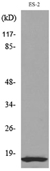Western blot analysis of lysate from ES-2 cells, using IL1B Antibody.