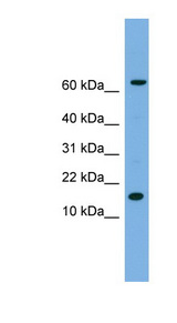 IL1B / IL1 Beta antibody LS-C116571 Western blot of HeLa lysate.  This image was taken for the unconjugated form of this product. Other forms have not been tested.