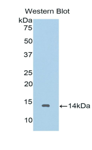 Western blot of recombinant IL10RA.  This image was taken for the unconjugated form of this product. Other forms have not been tested.