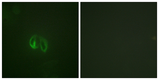 Immunofluorescence analysis of HepG2 cells, using IL-10R alpha Antibody. The picture on the right is blocked with the synthesized peptide.