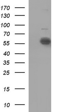 HEK293T cells were transfected with the pCMV6-ENTRY control (Left lane) or pCMV6-ENTRY IL10RA (Right lane) cDNA for 48 hrs and lysed. Equivalent amounts of cell lysates (5 ug per lane) were separated by SDS-PAGE and immunoblotted with anti-IL10RA.