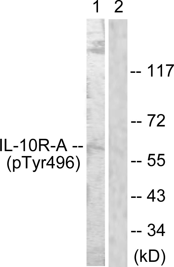 Western blot analysis of lysates from HUVEC cells, using IL-10R alpha (Phospho-Tyr496) Antibody. The lane on the right is blocked with the phospho peptide.