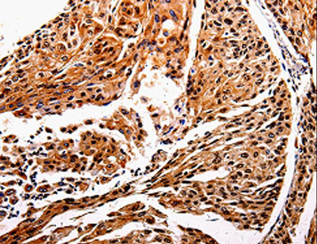 Immunohistochemistry of Human esophagus cancer using IL10RB Polyclonal Antibody at dilution of 1:20.