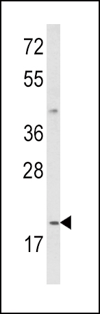 Western blot of IL12A Antibody in MDA-MB231 cell line lysates (35 ug/lane). IL12A (arrow) was detected using the purified antibody.
