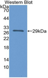 Western blot of recombinant IL12A / p35.