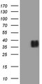 HEK293T cells were transfected with the pCMV6-ENTRY control (Left lane) or pCMV6-ENTRY IL12A (Right lane) cDNA for 48 hrs and lysed. Equivalent amounts of cell lysates (5 ug per lane) were separated by SDS-PAGE and immunoblotted with anti-IL12A (1:2000).