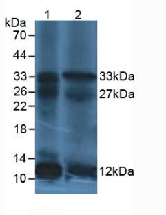 Western Blot; Sample: Lane1: Human leukocyte Cells; Lane2: Human Lymphocytes Cells.