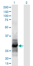 Western Blot analysis of IL12A expression in transfected 293T cell line by IL12A monoclonal antibody (M02), clone 1A6.Lane 1: IL12A transfected lysate (Predicted MW: 28.3 KDa).Lane 2: Non-transfected lysate.