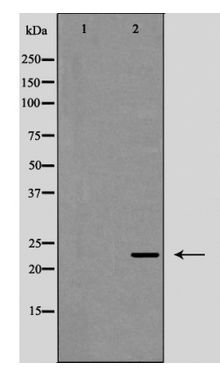 Western blot of Interleukin?12A expression in HeLa cells