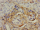 Immunohistochemistry image of paraffin-embedded human endometrial cancer at a dilution of 1:100