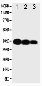 WB of IL12B / IL12 p40 antibody. All lanes: Anti-IL12B at 0.5ug/ml. Lane 1: Recombinant Human IL-12 Protein 10ng. Lane 2: Recombinant Human IL-12 Protein 5ng. Lane 3: Recombinant Human IL-12 Protein 2.5ng. Predicted bind size: 40KD. Observed bind size: 40KD.