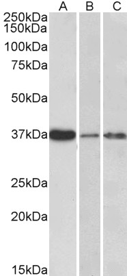 IL12B / IL12 p40 antibody (0.3µg/ml) staining of Human Liver (A), Skin (B) and Tonsil (C) lysate (35µg protein in RIPA buffer). Primary incubation was 1 hour. Detected by chemiluminescence.