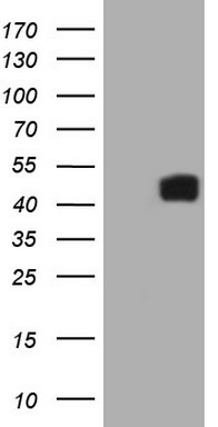 HEK293T cells were transfected with the pCMV6-ENTRY control (Left lane) or pCMV6-ENTRY IL12B (Right lane) cDNA for 48 hrs and lysed. Equivalent amounts of cell lysates (5 ug per lane) were separated by SDS-PAGE and immunoblotted with anti-IL12B (1:2000).