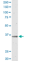 IL12B monoclonal antibody (M01), clone 2H6. Western Blot analysis of IL12B expression in HepG2.