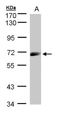 Sample (30 ug whole cell lysate). A: A431. 7.5% SDS PAGE. IL12R / CD212 antibody diluted at 1:1000