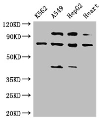 Positive WB detected in:K562 whole cell lysate,A549 whole cell lysate,HepG2 whole cell lysate,Rat heart tissue;All lanes:IL12RB1 antibody at 3.5?g/ml;Secondary;Goat polyclonal to rabbit IgG at 1/50000 dilution;Predicted band size: 74,73,43 KDa;Observed band size: 74,43,110 KDa;