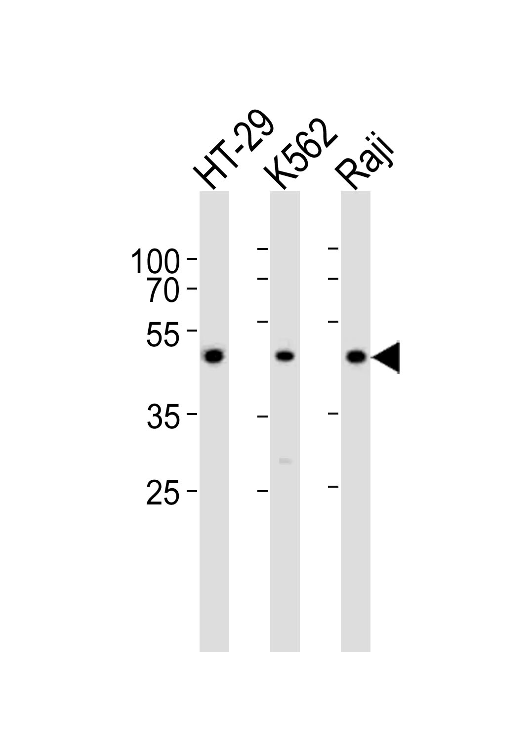 Western blot of lysates from HT-29, K562, Raji cell line (from left to right) with IL13RA1 Antibody. Antibody was diluted at 1:1000 at each lane. A goat anti-rabbit IgG H&L (HRP) at 1:10000 dilution was used as the secondary antibody. Lysates at 35 ug per lane.