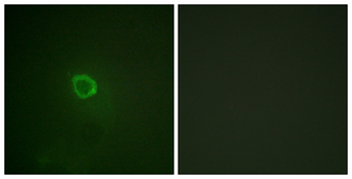 Immunofluorescence analysis of HepG2 cells, using IL-13R alpha1 (Phospho-Tyr405) Antibody. The picture on the right is blocked with the phospho peptide.