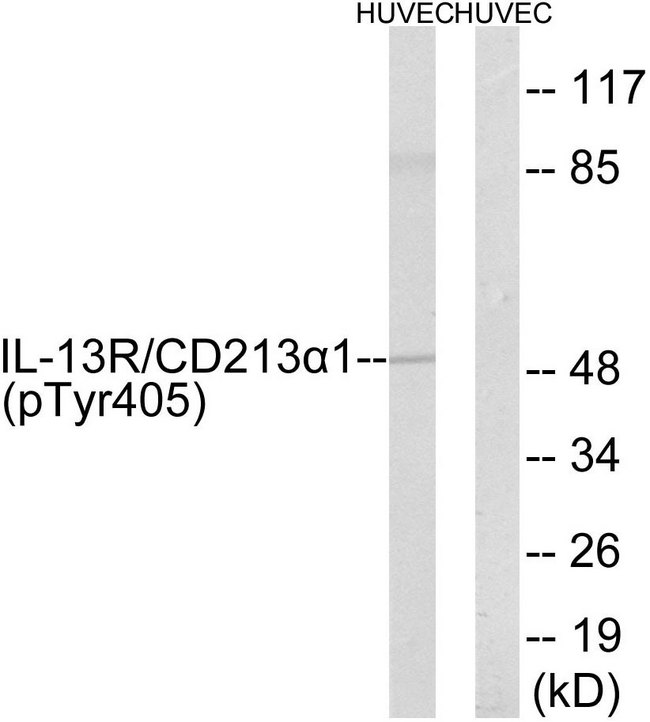 Western blot analysis of lysates from HUVEC cells treated with serum 20% 15', using IL-13R alpha1 (Phospho-Tyr405) Antibody. The lane on the right is blocked with the phospho peptide.