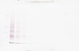 Anti-Human IL-15 Western Blot Unreduced
