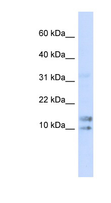 IL15 / IL-15 antibody LS-C102674 Western blot of 293T cell lysate.  This image was taken for the unconjugated form of this product. Other forms have not been tested.