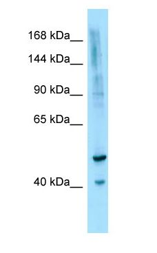 IL16 / IL-16 antibody Western Blot of OVCAR-3.  This image was taken for the unconjugated form of this product. Other forms have not been tested.