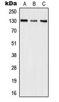 Western blot analysis of IL-16 expression in MCF7 (A); Raji (B); mouse brain (C) whole cell lysates.