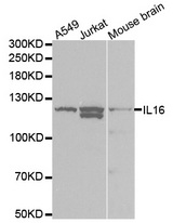 Western blot analysis of extracts of various cell lines, using IL16 antibody at 1:1000 dilution. The secondary antibody used was an HRP Goat Anti-Rabbit IgG (H+L) at 1:10000 dilution. Lysates were loaded 25ug per lane and 3% nonfat dry milk in TBST was used for blocking.
