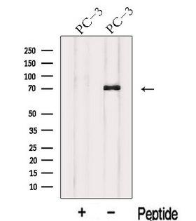 IL17RE Antibody - Western blot analysis of extracts of PC-3 cells using IL17RE antibody. The lane on the left was treated with blocking peptide.