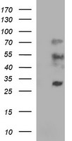 IL1A / IL-1 Alpha Antibody - HEK293T cells lysate (5 ug, left lane) and full length human recombinant protein of human IL1A(NP_000566) produced in HEK293T cell (5 ug, right lane)were separated by SDS-PAGE and immunoblotted with anti-IL1A.