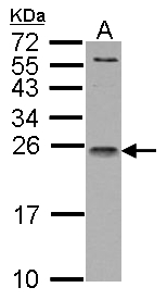 IL1 Receptor antagonist antibody detects IL1RN protein by Western blot analysis. A. 30 ug Raji whole cell lysate/extract. 15 % SDS-PAGE. IL1 Receptor antagonist antibody dilution:1:1000