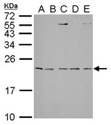 IL1 Receptor antagonist antibody detects IL1RN protein by Western blot analysis. A. 30 ug Neuro2A whole lysate/extract. B. 30 ug C8D30 whole cell lysate/extract. C. 30 ug NIH-3T3 whole cell lysate/extract. D. 30 ug Raw264.7 whole cell lysate/extract. E. 30 ug C2C12 whole cell lysate/extract. 15 % SDS-PAGE. IL1 Receptor antagonist antibody dilution:1:1000