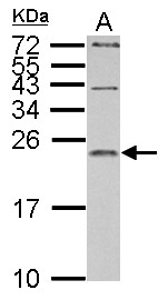 IL1 Receptor antagonist antibody detects IL1RN protein by Western blot analysis. A. 30 ug PC-12 whole cell lysate/extract. 15 % SDS-PAGE. IL1 Receptor antagonist antibody dilution:1:1000