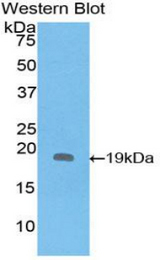 Western blot of recombinant IL1RN.  This image was taken for the unconjugated form of this product. Other forms have not been tested.