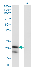 Western blot of IL1RN expression in transfected 293T cell line by IL1RN monoclonal antibody (M03), clone 1H5.