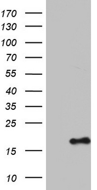 HEK293T cells were transfected with the pCMV6-ENTRY control (Left lane) or pCMV6-ENTRY IL1RN (Right lane) cDNA for 48 hrs and lysed. Equivalent amounts of cell lysates (5 ug per lane) were separated by SDS-PAGE and immunoblotted with anti-IL1RN.