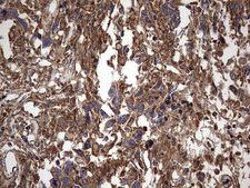 IL1RN Antibody - IHC of paraffin-embedded Adenocarcinoma of Human ovary tissue using anti-IL1RN mouse monoclonal antibody. (Heat-induced epitope retrieval by 1 mM EDTA in 10mM Tris, pH8.5, 120°C for 3min).