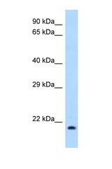 IL1RN / IL-1RA antibody Western blot of 293T Cell lysate. Antibody concentration 1 ug/ml.  This image was taken for the unconjugated form of this product. Other forms have not been tested.