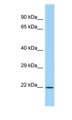IL28B antibody Western Blot of Fetal Lung. Antibody dilution: 1 ug/ml.  This image was taken for the unconjugated form of this product. Other forms have not been tested.