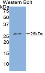 Western blot of recombinant IL2RA / CD25.